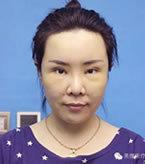 超声刀+双眼皮修复+开眼角+自体脂肪填充对比案例