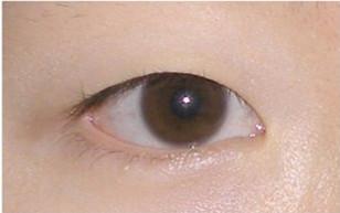 韩国清潭第一整形-眼部对比图