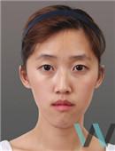 韩国原辰双鄂+面部轮廓对比案例效果