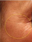 韩国童颜中心眼尾提升除皱对比图