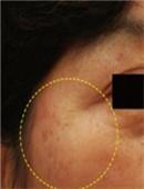 韩国童颜中心眼尾除皱对比图