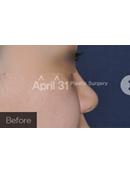 韩国4月31日整形外科隆鼻手术案例对比图