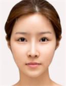 韓國灰姑娘眼部整形對比案例