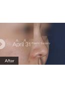 韩国4月31日整形医院-韩国4月31日隆鼻手术案例对比图解析!
