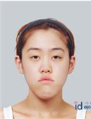 樸相薰ID醫院-let美人許譽恩整形經歷簡述,原來這么多細節不曾知道!