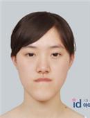 樸相薰ID醫院-let美人郭方圓整形前后對比照片,及恢復全過程!
