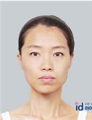"""韩国ID医院面部轮廓整形手?术,揭秘""""综合""""整形变化?有多大?!"""