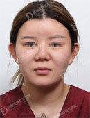 韩国女神整形-韩国女神医院做全身吸脂怎么样 看我的术后效果