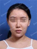 韩国女神整形医院-网红在韩国女神做完面部轮廓 术后60天日记