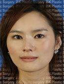 韩国BK医院眼部切开?法?+上睑下垂提肌矫正术?对比