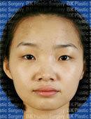 韩国bk医院眼部整形埋线法双眼皮+开内眼角术前术后对比