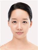新帝瑞娜整形医院-韩国灰姑娘医院地包天矫正手术对比案例