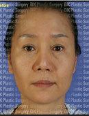韩国BK整形外科面部除皱对比图