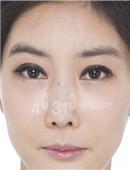韩国4月31日整形医院-韩国4月31日朝天鼻修复对比案例