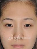 韩国4月31日整形医院-韩国4月31日整形外科眼修复对比案例
