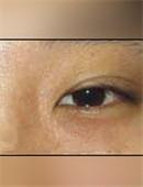 韩国枓翰-韩国枓翰整形外科眼部修复对比案例