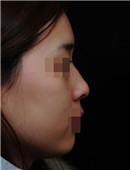 韩国onyoung整形外科-鼻整形对比案例