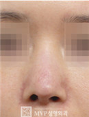 韩国mvp医院鼻修复对比案例