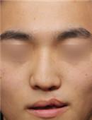 韩国MVP医院?唇裂修复对比案例