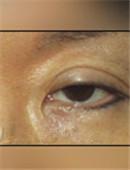 韩国枓翰-韩国枓翰整形外科眼睑修复手术对比案例