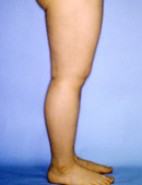 韩国江南三星医院大腿吸脂对比案例