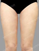 大腿?吸脂对比案例