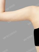 手臂吸脂术前术后对比