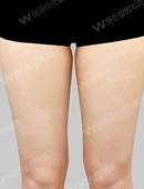 大腿吸脂?对比案例