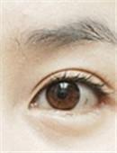 韩国原辰眼部修复手术对比案例