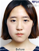 韩国FACE-LINE整形-面?部轮廓对比案例