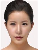 韩国灰姑娘整形外科眼部修复对比案例