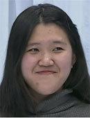 韩国FACE-LINE整形外科-在菲斯莱茵做完面部?整形后的效果令人震惊!!