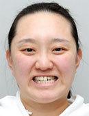 韩国FACE-LINE整形外科-她在菲斯莱茵做整形的全过程和恢复效果图