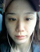 【后记】在韩国灰姑娘做完隆鼻手术恢复全过程