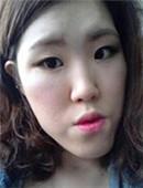 韩国原辰双鄂手术效果好吗?