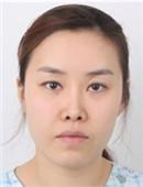 韩国FACE-LINE整形外科-我在韩国做?颧骨、下颌角整形的真实?记录?
