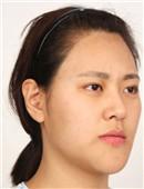 韓國FACE-LINE整形外科-韓國整容效果好嗎?看我輪廓整容經歷就知道