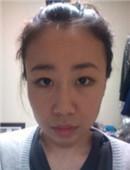 我去韩国种植发际线的真实经历