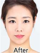 韩国FACE-LINE整形外科-韩国面部骨骼不对称整形手术矫正真实经历