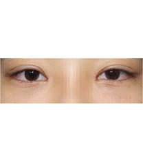 韩国UcanB整形-双眼皮对比图