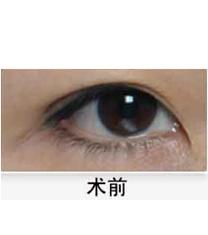 韩国优容整形-开眼角整形对比案例