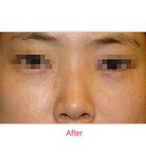 韩国SamSkin整形外科去眼袋案例对比图_术后