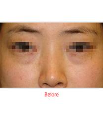 韩国SamSkin整形外科去眼袋案例对比图_术前