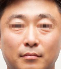 江南Theme皮肤科医院去眼袋案例对比图_术前