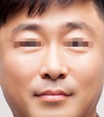 江南Theme皮肤科医院去眼袋案例对比图_术后