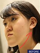 韩国FACE-LINE整形外科-地包?天整形案例,图片记录2个月变化