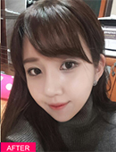韩国FACE-LINE整形外科-地包天整?形案例,图片记录2个月变化