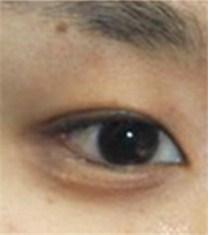 韩国初雪整形外科医院-韩国初雪整形外科眼睛修复对比案例