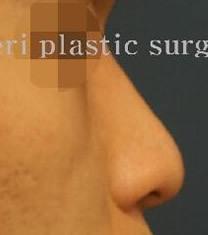 韩国世丽整形医院-韩国世丽整形医院假体隆鼻对比图