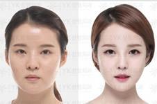 韩国YK医院童颜轮廓手术效果分析!